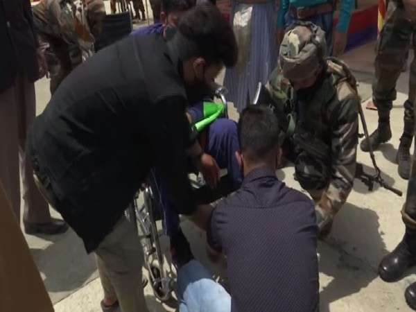 J-K: Army organises artificial limb fitment camp in Kupwara